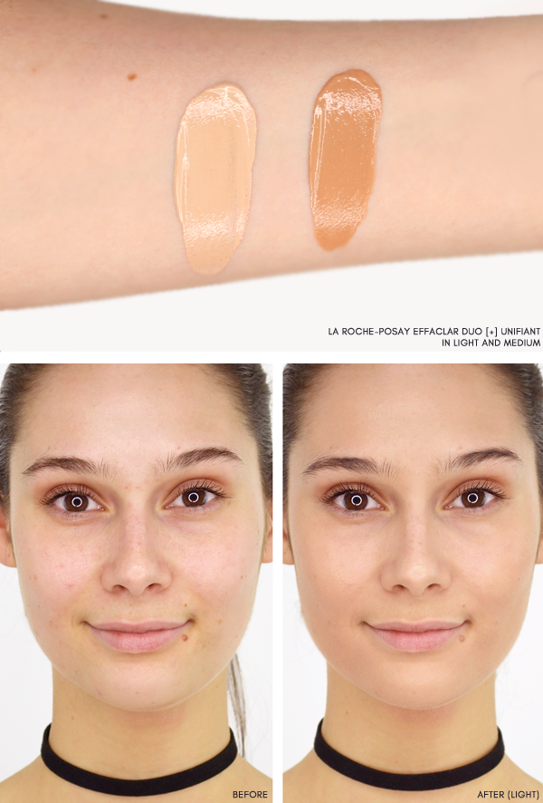 La Roche-Posay Effaclar Duo + Before and After