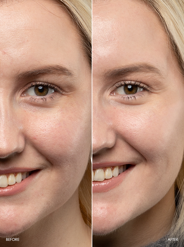 Chelsey-Before-After-Review-Of-Caudalie-Vinoperfect-Dark-Spot-Correcting-Glycolic-Night-Cream
