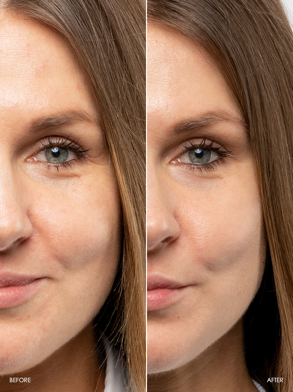 Elisabeth-Before-After-Review-Of-Caudalie-Vinoperfect-Dark-Spot-Correcting-Glycolic-Night-Cream