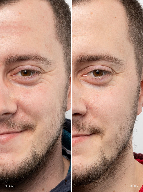 Richard-Before-After-Review-Of-Caudalie-Vinoperfect-Dark-Spot-Correcting-Glycolic-Night-Cream