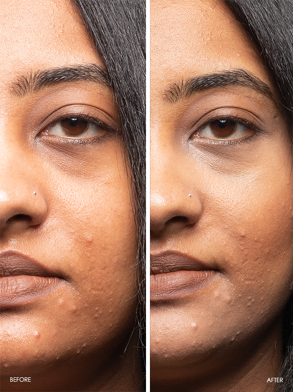 Yves Saint Laurent Touche Eclat High Cover Radiant Concealer Pen Before and After in shade 4.5 Golden